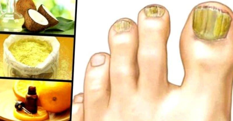 remedios caseros hongos uñas