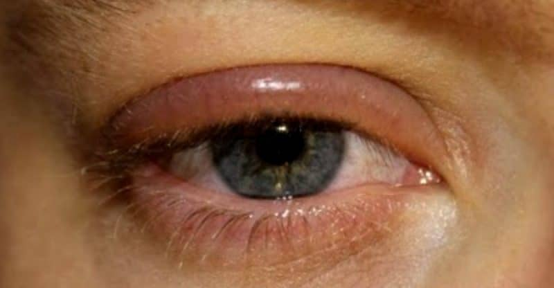 remedios caseros ojo hinchado