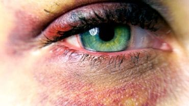 remedios caseros ojo morado