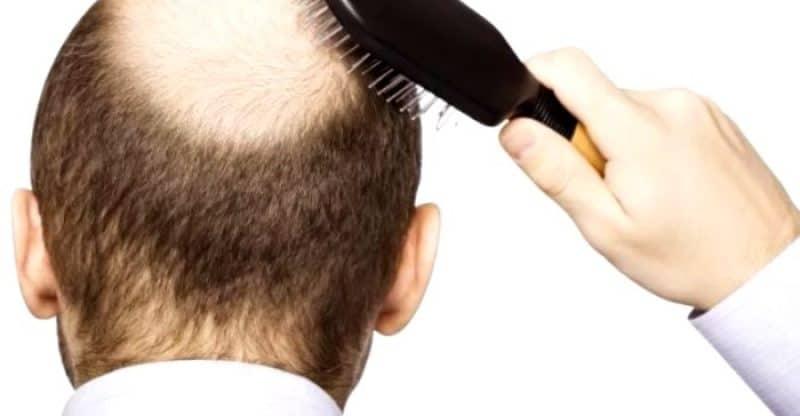 remedios caseros pérdida cabello