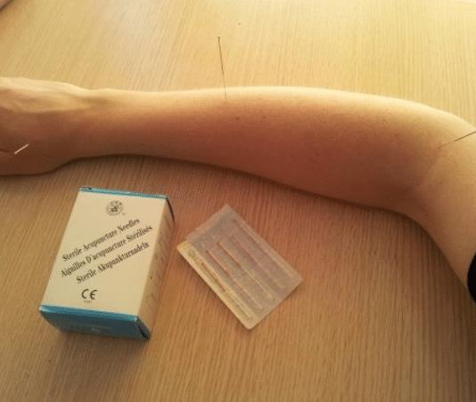 acupuntura nataural